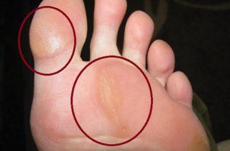 натоптыши на большом пальце ноги